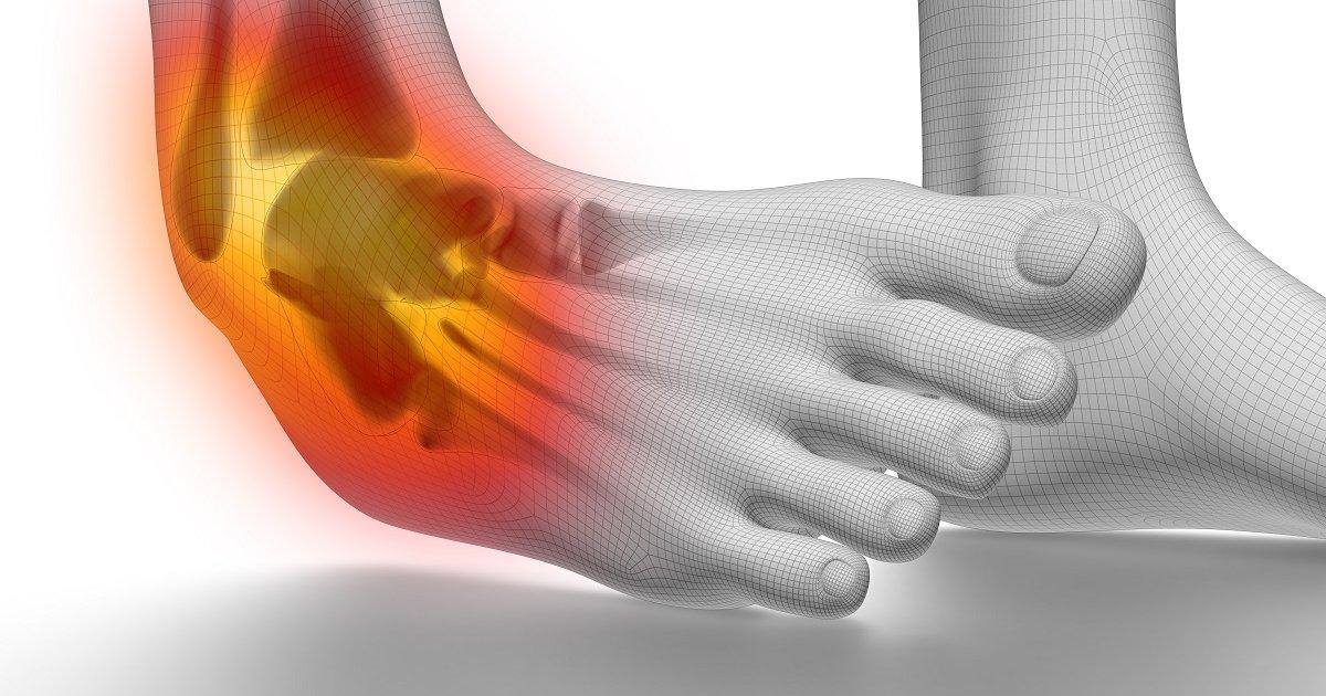 ízületi fájdalom csípőtörés után