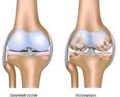 Hogyan kezeljük az osteoarthritiset?