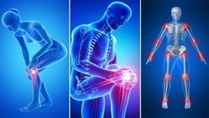 csípőízület endoprotezálása közös javítási készítmények áttekintése