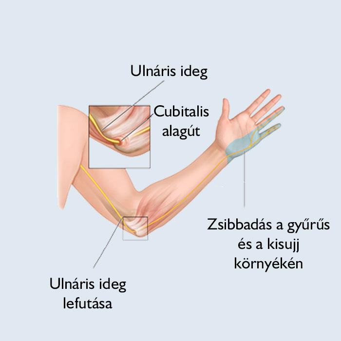 az ízület fáj, és az ujj elzsibbad)