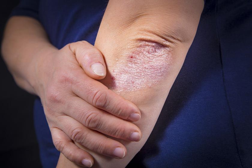 psoriasis ízületi gyulladás hogyan kezelhető)
