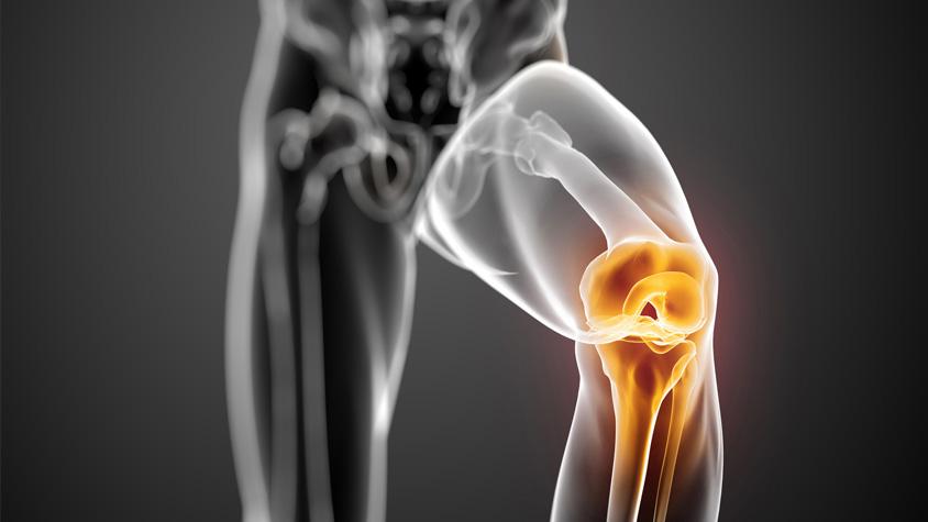 ízületi fájdalom és testépítés izület torna