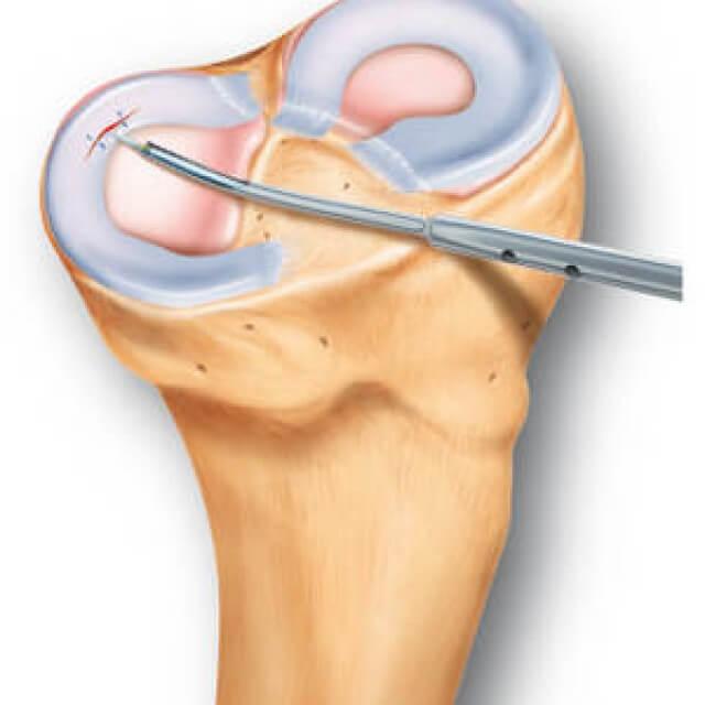 a bal térdízület deformáló artrózisa 3 fok)