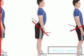 Milyen sérülések és betegségek vezetnek a jobb és bal váll fájdalmához - Csukló