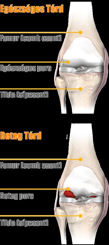 térdízületi kezelés artrózisa