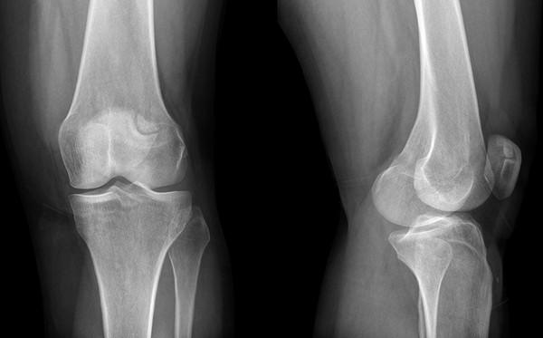 térdízületek deformációja térdízületi kezelés artrózisa