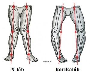 súlyos fájdalom a csípőízületben és a lábban)