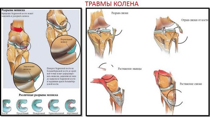 Erősen fáj a lábad a hőmérsékleten - Dongaláb