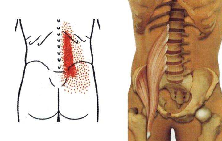 Fájdalom a láb metatarsusában