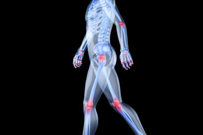 Erősen fáj a lábad a hőmérsékleten