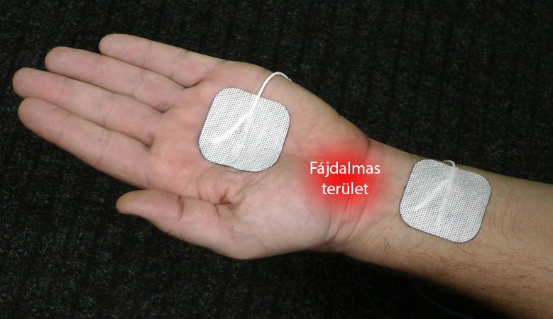 arthrosis kezelés az altaj területén)