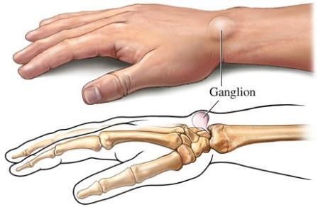 a kéz radiális ízületének ízületi gyulladása)