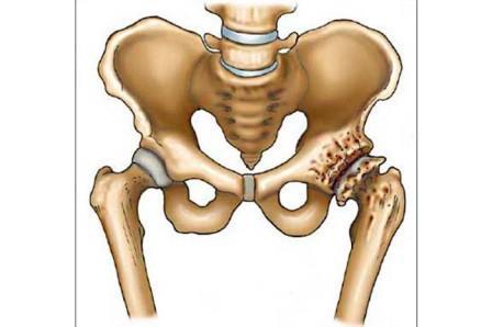 csípőízületi szakaszok a térd kenőcsének artrózisa kezelési áttekintés