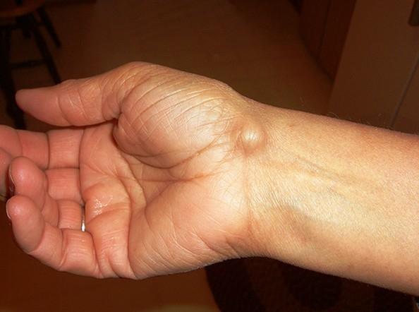 nemrégiben fellépő ízületek és izmok fájdalma ízületi fájdalomcsillapító fórum
