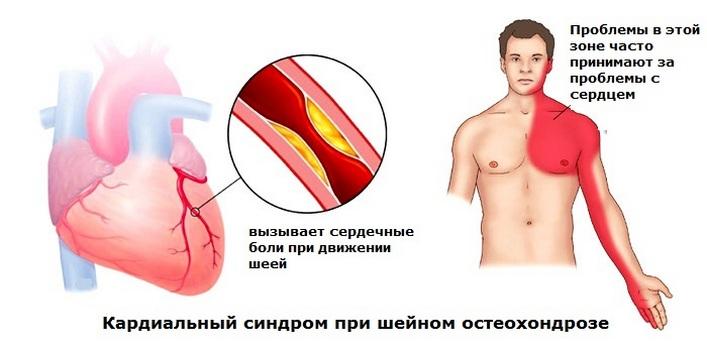 fájdalom a könyökízületben nyaki osteochondrozzal