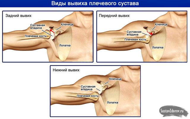 a vállízület károsodásának típusai)