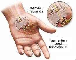 fáj a középső ujj ízületei)