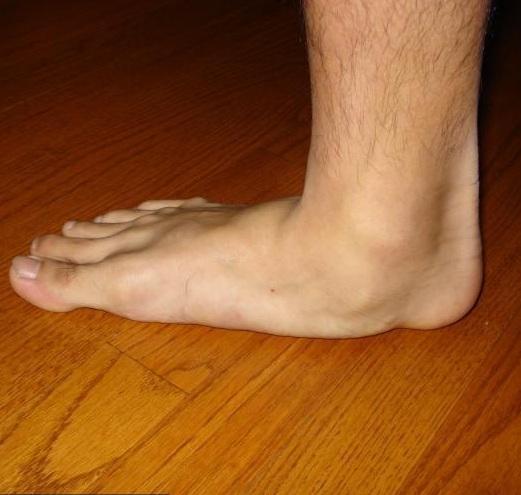 az alsó lábszár, a bokaízület és a láb károsodása ízületi fájdalom a láb felett