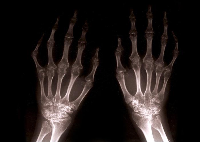 rheumatoid arthritis és hogyan lehet kezelni)