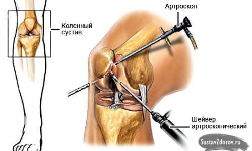 térdízület deformáló ízületi ízületi kezelése