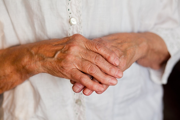 Otthoni gyógymódok a kéz ízületi gyulladása ellen