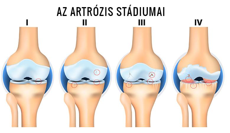 napi kórházi artrózisos kezelés