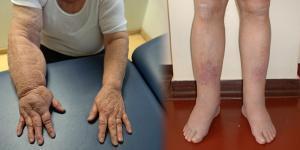 a kézízületek orvosi kezelése csípő és térd fájdalom