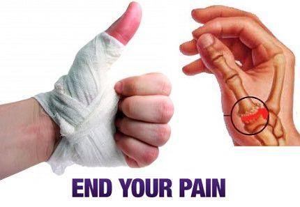 ízületi fájdalom a fossa ulnaron