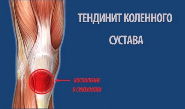 degeneratív degeneratív folyamatok a térdízületi ízületi gyulladásban)