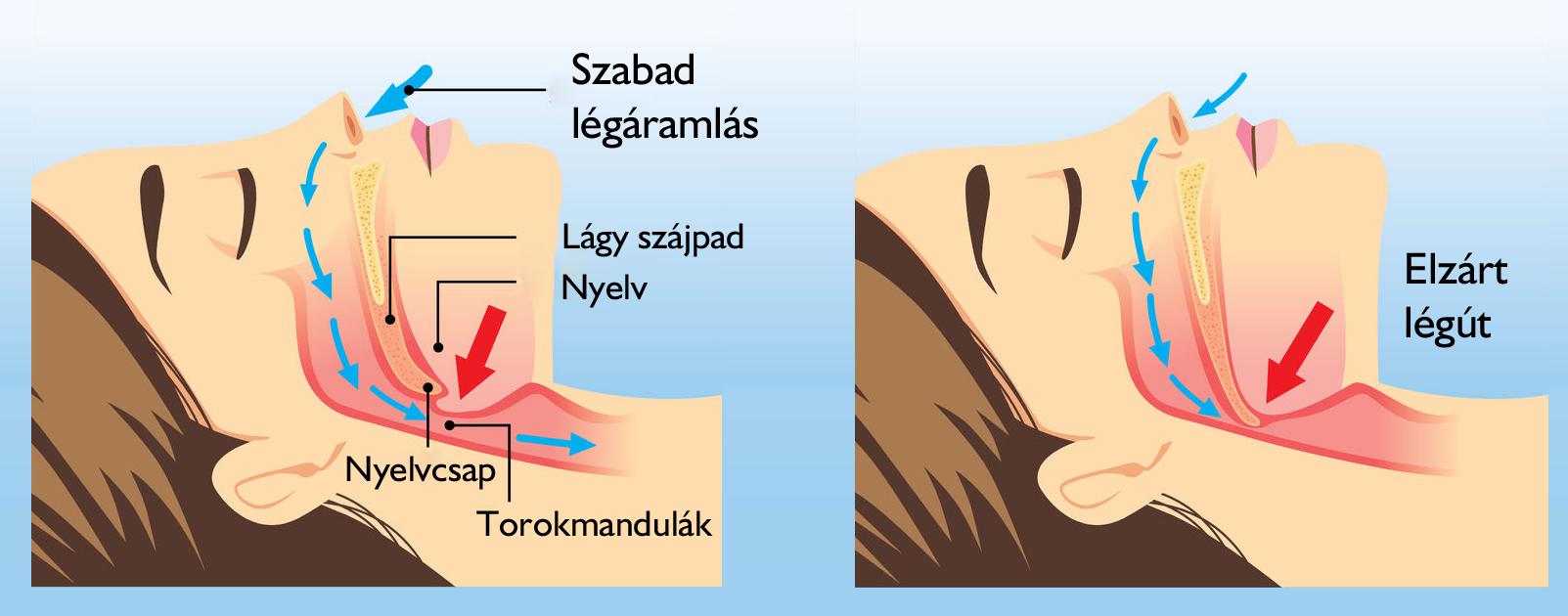 Horkolás gátló műtétek – Kardirex Egynapos Sebészeti Centrum