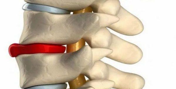 az íves ízületek artrózisa az ágyéki 1-2 fokos