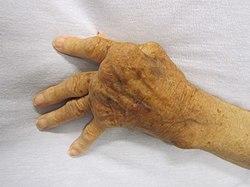 deformáló artrosis a kéz kis ízületeiben