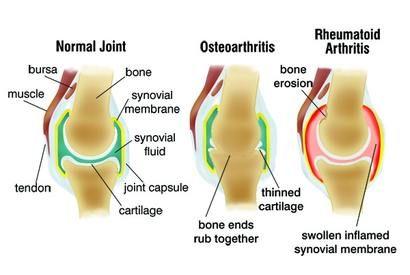 otthon kezelt artrózis
