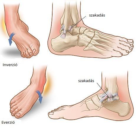 Boka és lábfejfájdalmak