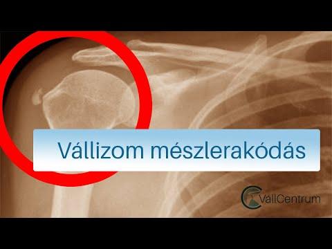 kenőcsök a vállízület osteochondrozisának kezelésére)