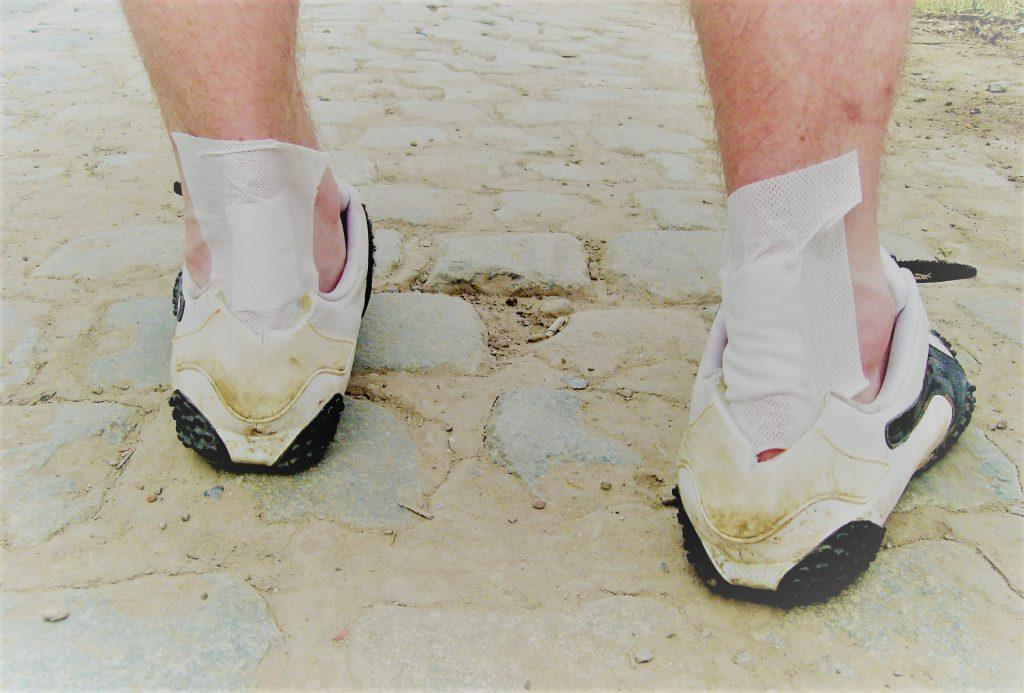 hogyan kezeljük a lábízületi ráncolásokat miért fáj az ízületek és a lábak