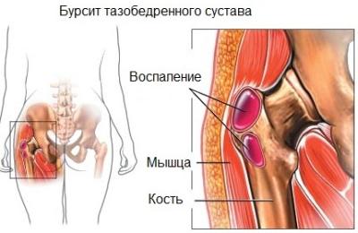 fájdalom a csípőízületekben mi ez ízületek és csontok fertőző betegségei