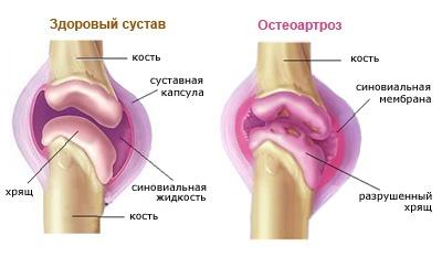 2. fokozatú coxarthrosis betegség)