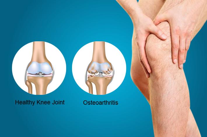 térdízületek duzzanata artrózisos kezeléssel