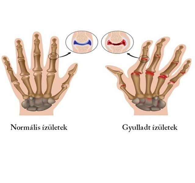 hogyan lehet enyhíteni az ízületi és izomgyulladásokat 2. fokozatú coxarthrosis betegség