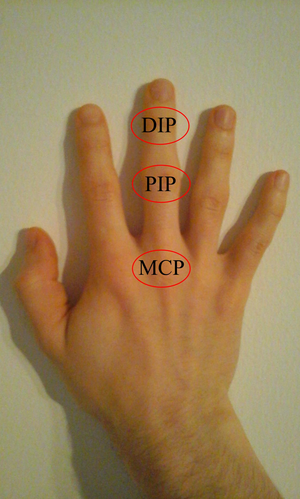 az ujjak traumás ízületi gyulladásának kezelése