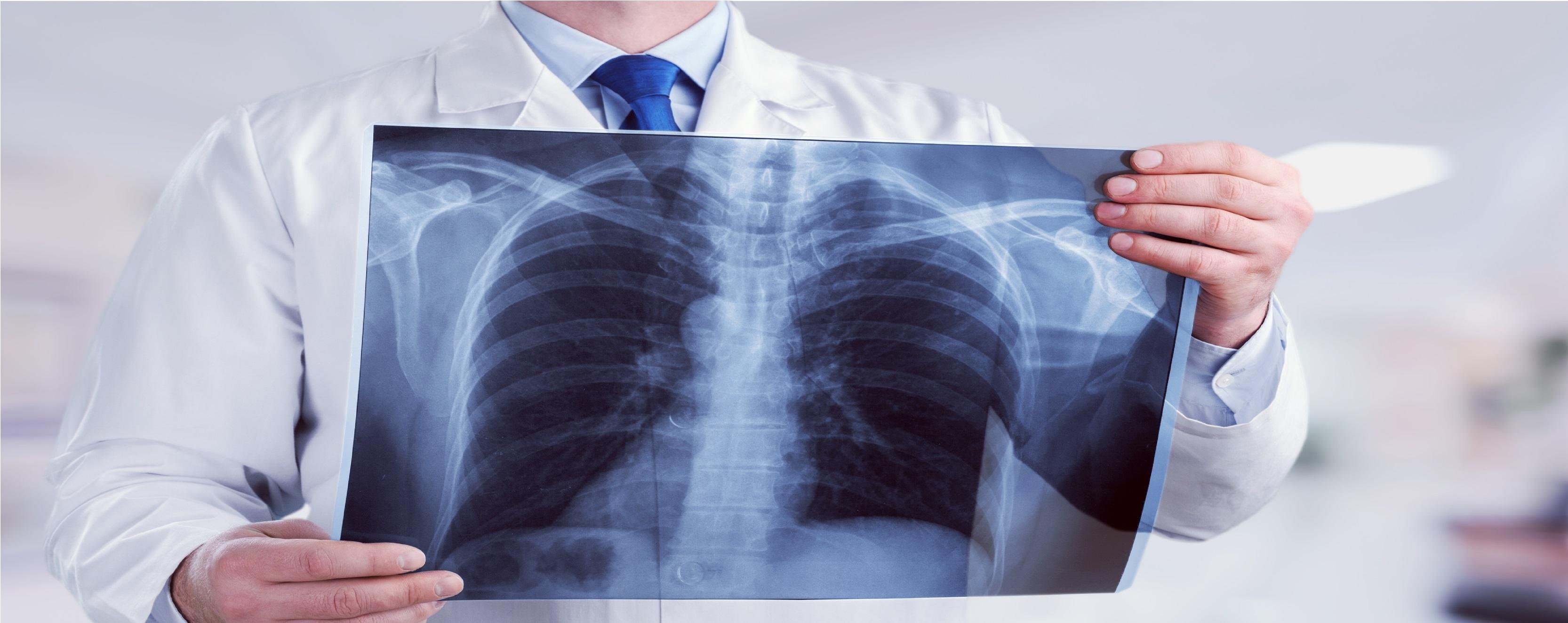 ízületi fájdalom és tüdő sarcoidosis