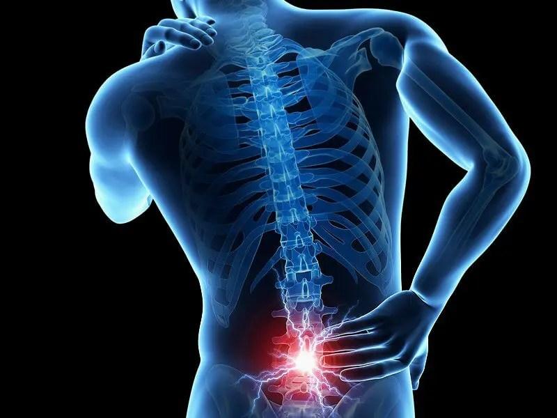 a 68. cikk az izom-csontrendszer és a kötőszövet betegségei