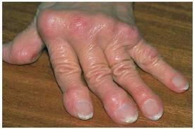kenőcsök rheumatoid arthritisben szenvedő kezekhez kicsavart térd inak kezelése