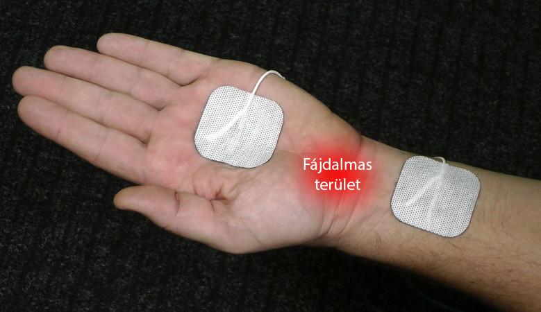 az artrózis kezeléséről szól)
