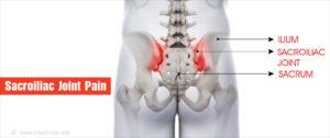 gerincoszületi ízületek ízületi gyulladása gyógyszerek a vállízület periarthritis kezelésére