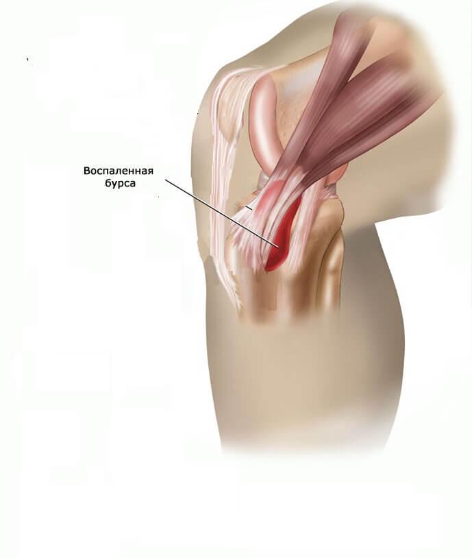 térdízület kezelés feszített szalagjának boncolása a vállízület akut artrózisának kezelése