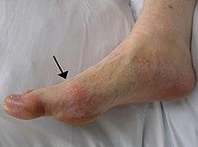 ízületi fájdalom mandula miatt a bokaízület fokának artrózisa