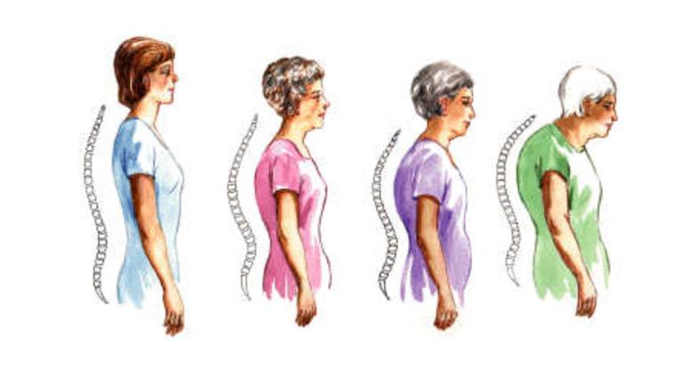 befolyásolhatja az oszteoporózis az összes ízületet