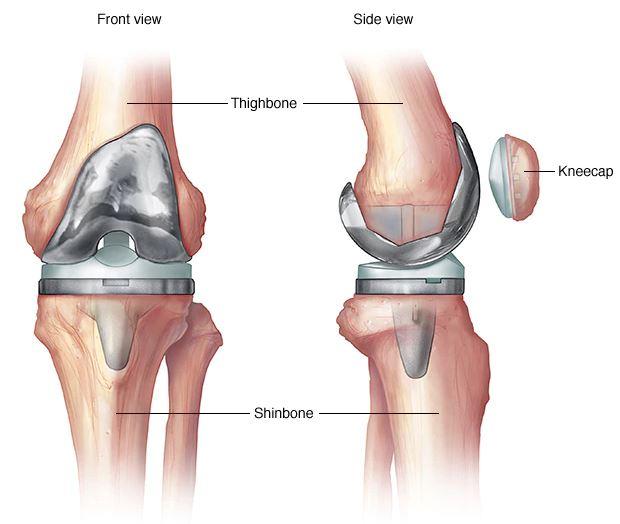 műtét utáni térd artritisz